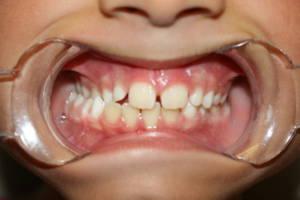 OSICS ortodoncia postural